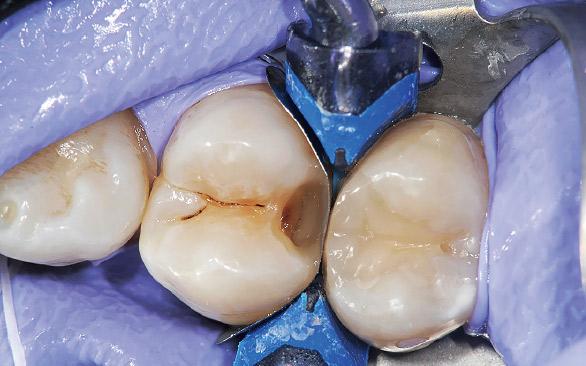 図9 クリアフィルマジェスティESフロー(High A-2D)にてマトリックス内面が作り出す形態と残存歯質とを一体化させる。