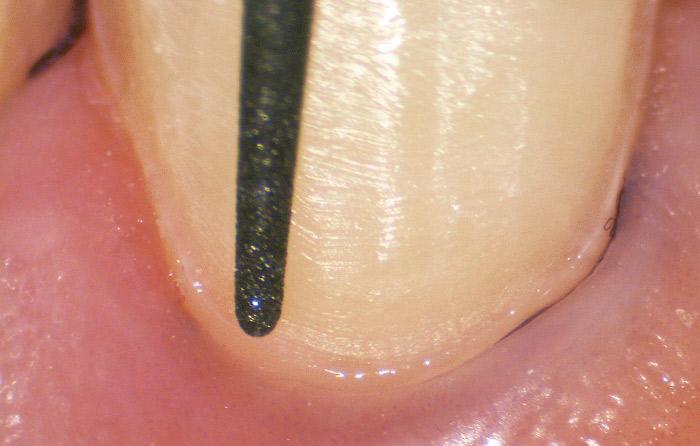 ベニア修復の症例。マイクロスコープを活用することでマージン部分の形成もより精密に行える。