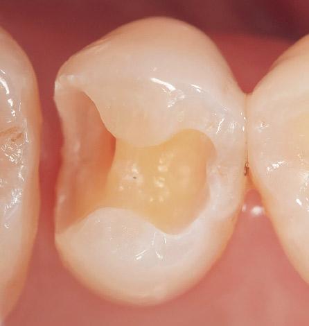 ケース1-1 右上第2小臼歯のメタルインレーをメタルフリーにしたいとの希望にて来院。インレー除去、再窩洞形成を行う。