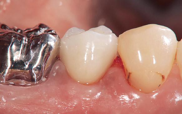 図6 圧排糸をはずしてセメント除去した後の頰側面観。