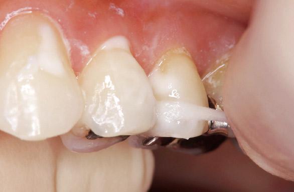 図19 隣接面には、スポンジ状のフロス(ライオン歯科材:DENT.e-floss使用)を用いて塗布する。