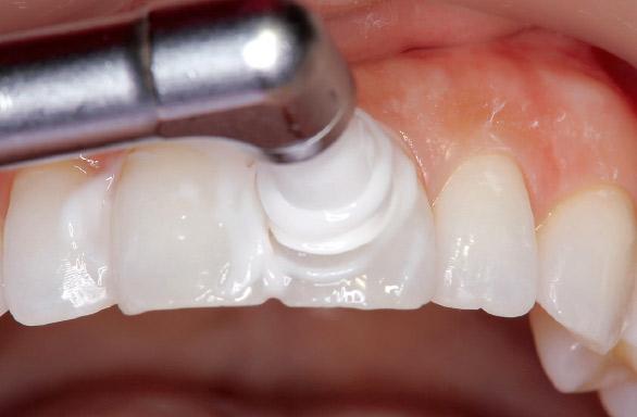 図11 上顎前歯部平滑面にはP・CSプロフィーカップソフトがフィットしやすい。
