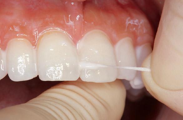 図12 隣接面には、スポンジ状のフロス(ライオン歯科材:DENT.e-floss使用)を用いて塗布する。