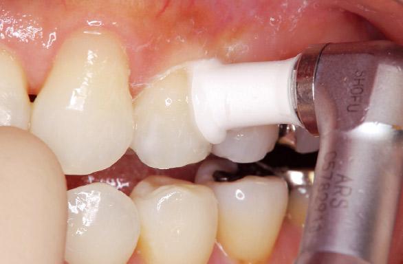 図18 ポリッシング後、APペーストを塗布。小臼歯は湾曲が強いため、P・CSプロフィーカップスリムがフィットしやすい。