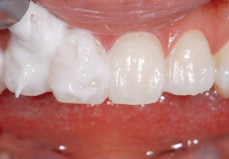 症例3−2 歯面全体を覆うぐらいペーストを塗布