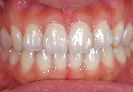 症例3-3 塗布後は、舌感も良くなった。