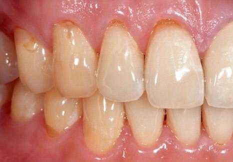 症例2−1 上顎右側の歯頸部に知覚過敏が認められた。
