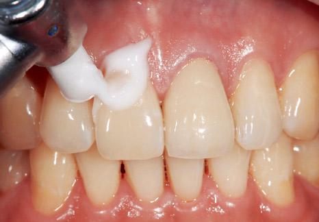 症例2−2 歯肉への付着も気にせず塗布。