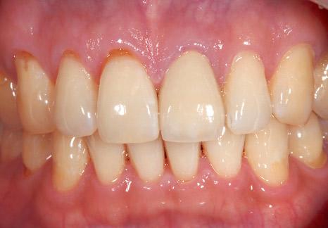 症例2−3 簡単に水洗でき、歯面に残りにくい。