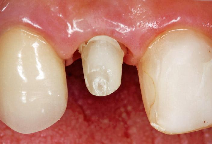 図12- l 支台歯形成後、プロビジョナルクラウンで辺縁歯肉のマネージメント終了時。