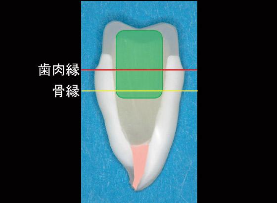図2 緑枠の部分を補強する、という意識をもつことが大切である。水平的には全周かつ最外周に、垂直的には歯肉縁ラインをまたぐように配置するのが理想である。