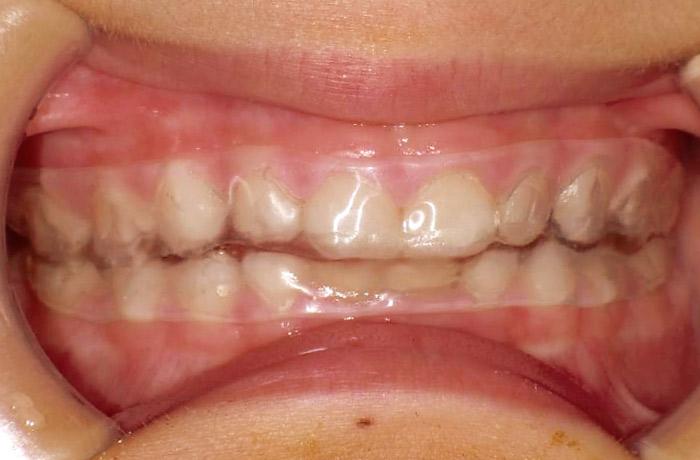 写真4 デュラソフト®を使用した顎骨骨折の顎間固定