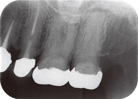 図1 66歳女性。上顎左側第二大臼歯の根尖病変。