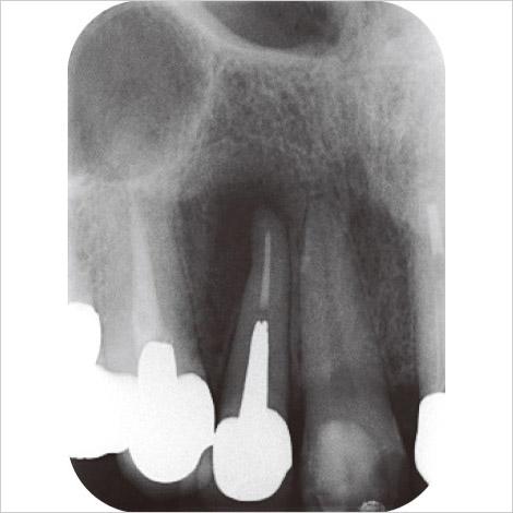 図5 54歳男性。上顎右側側切歯。