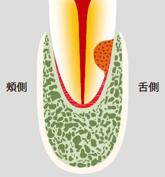図20-a 歯根外部吸収。