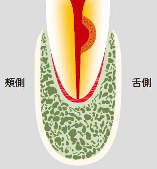 図20-b 歯根内部吸収。