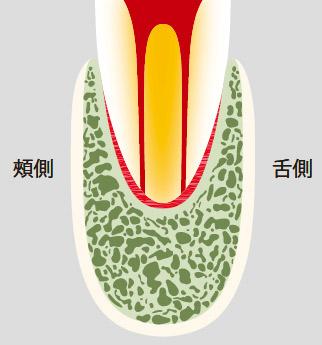 図20-c 単根2根管ではお互いに重複して1根管に見える。