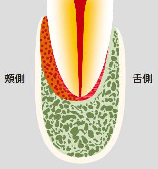 図21-a 頰側や舌側に沿った根側病変はデンタルX線写真には写らない。