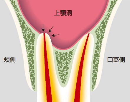 図21-b 上顎大臼歯の根尖が上顎洞に接しているとそこに病変があってもデンタルX線写真では不鮮明になりやすい。