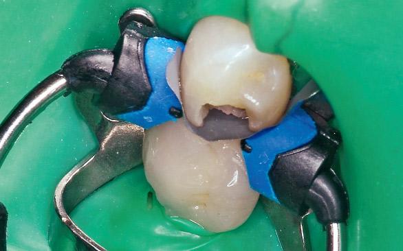 図7 隣接面コンタクトの回復のためにコンポジタイト3Dリテーナー(スモール)を使用。残存歯質との適合を確認する。