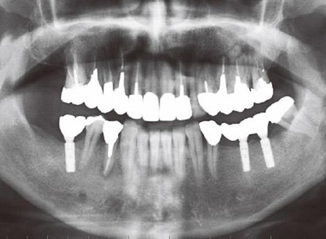 写真12 症例A:オルソパントモX線所見