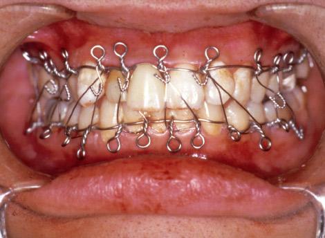 写真14 下顎骨骨折:顎間固定中