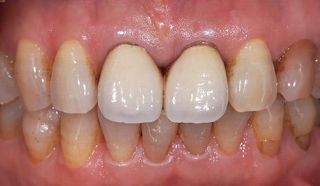 図1-1 初診。上顎左右中切歯の不良補綴装置による審美障害をフルジルコニアクラウン(カタナジルコニアUTML)で改善することとした。
