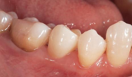 図2-5 ステイン、グレーズ焼成を施したSTMLクラウンは透明感や表面性状が周囲の天然歯に調和している。