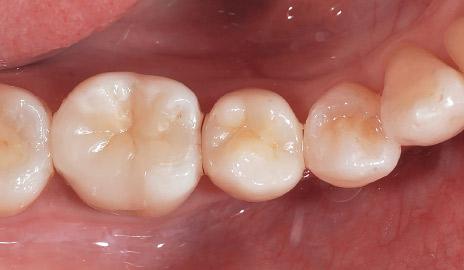 図2-6 咬合面観。カタナジルコニアSTMLを用いれば、審美性の高い臼歯のフルジルコニア修復が可能である。