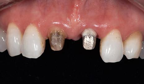 図1-2 支台歯形成。11は有髄歯、21は無髄歯で装着されていたメタルコアをそのまま使用した。