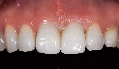 図1-5 UTMLクラウンの透明感は周囲の天然歯に調和しており、所定のクラウンの厚みを確保していれば、支台歯の色調の影響も受けない。