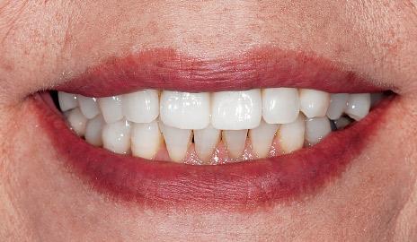 図1-6 カタナジルコニアUTMLを用いれば透明感のある審美性の高い前歯のフルジルコニア修復が可能である。