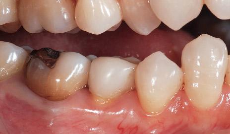 図2-1 初診。下顎右側第二小臼歯の不良補綴装置による審美障害を、フルジルコニアクラウン(カタナジルコニアSTML)で改善することとした。