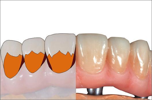 図11 目標シェードにするために歯茎側1/2にA+、隣接面にサービカル1を塗布・仮重合する。