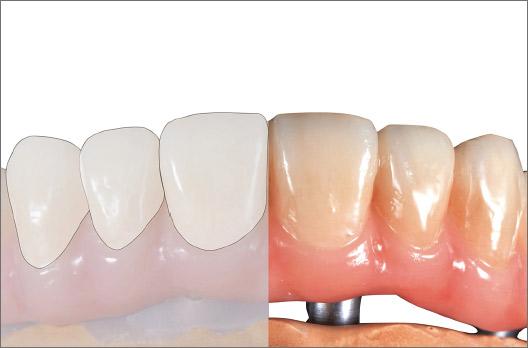 図12 決定した色調を持続するためにレジン前装面全体に歯肉部も含めクリアー1をしっかりと塗布する。