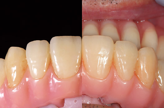 図19 模型上の完成時を左側に、セット後1年6ヵ月経過時のバフがけしたものを右側に並べた比較写真。