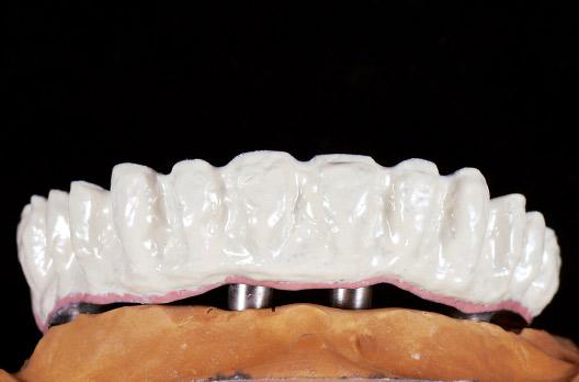 図5 アロイプライマー・オペークプライマー後、全体にPOを塗布・重合した後、再度オペークプライマー処理、歯肉との境界部のみP(ピンクオペーク)・それ以外はUOを塗布・重合した。