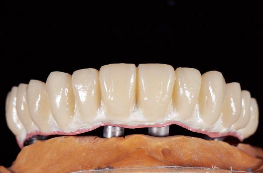 図6 歯冠部にUBを築盛・重合した。