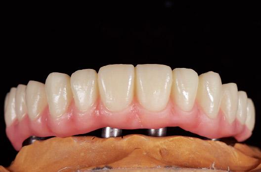 図7 歯肉部築盛完了。カラーコート塗布前にサンドブラスト処理(50μ3bar)をおこなう。その後、カラーコートプライマーをまんべんなくレジン面全体に塗布・エアーブローし、ボディレジンの色調確認と表面の細かく深い傷を埋めるため流動性の高い状態のクリアー1をごく薄く塗布する。