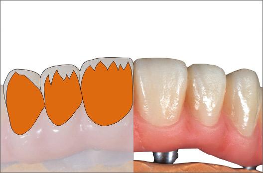 図8 歯茎側2/3にA +を目標シェードより淡く塗布・仮重合する。