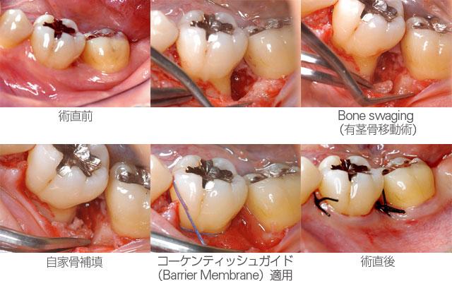 大臼歯の3壁性骨欠損への対応の写真