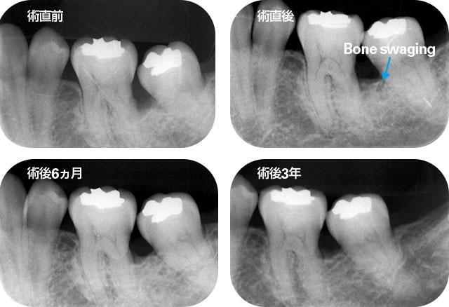大臼歯の3壁性骨欠損の術直前から術後3年までのデンタルX線写真の画像