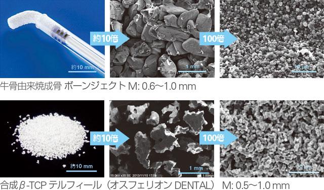 牛骨由来焼成骨ボーンジェクトと合成β-TCP テルフィール(オスフェリオンDENTAL)のSEM写真の画像