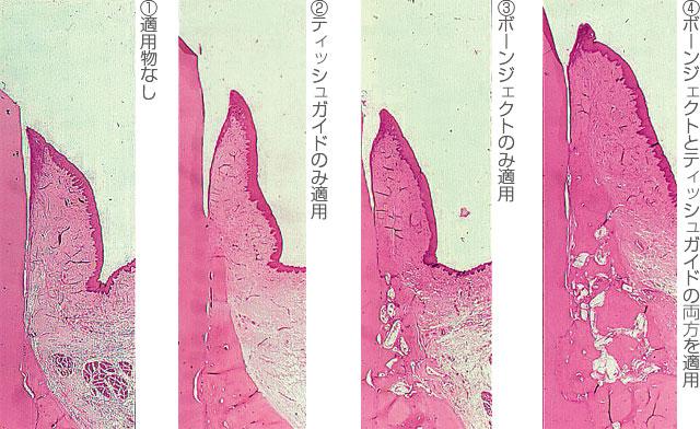 ビーグル犬下顎第3・4前臼歯部から全層弁を剥離し、近心根部に5×5mmの裂開型骨欠損を作製し、各種適用と全層弁の復位縫合を行った後の48週目(1年目)の組織標本の画像