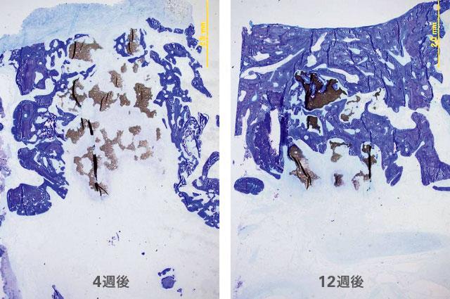 ビーグル犬下顎骨欠損適用後のトルイジンブルー染色による組織標本の画像