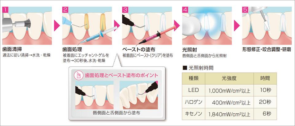 図4 使用方法