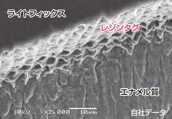 図9 ヒト歯未研削エナメル質とライトフィックスとの接着界面のSEM像