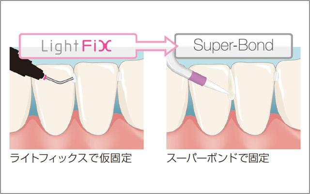 図10 「ライトフィックス」で仮固定した後に「スーパーボンド」で固定する例