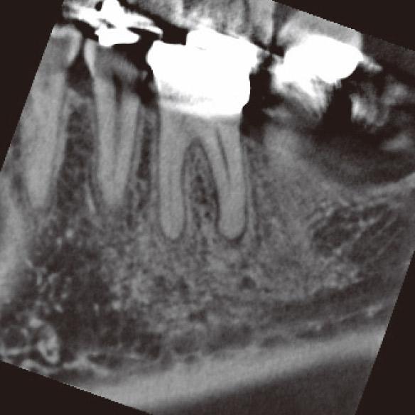 図1c CBCT矢状断でDB根根尖部に病変が確認された。