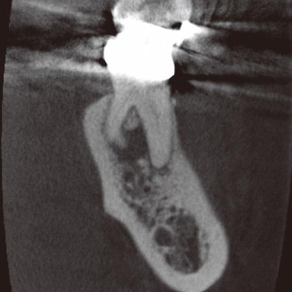 図1d CBCT前頭断。DL根は頰側に湾曲しており、根尖部の骨破壊はかなり進行していた。